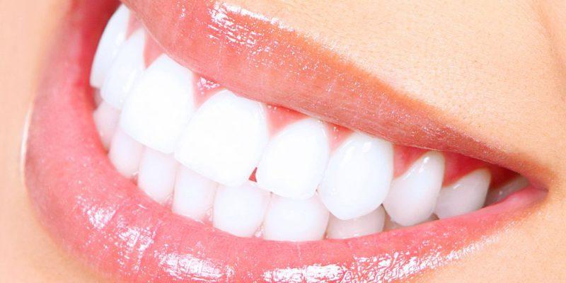 Tannbleking gjøres oftest hjemme