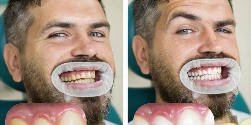 Hvor hvite kan tennene bli